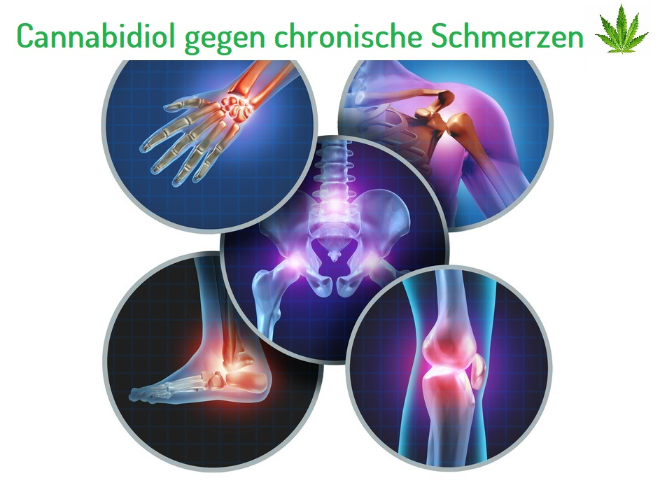 cbd bei chronischen Schmerzen
